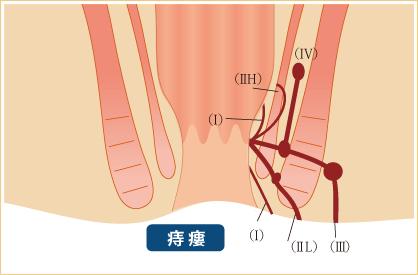 痔瘻と肛門周囲膿瘍
